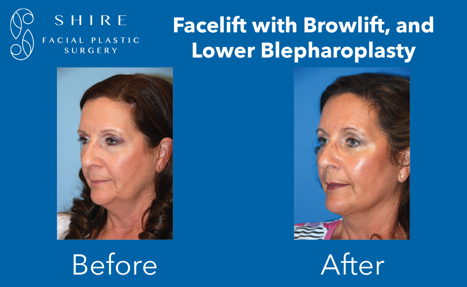 Facelift-Before-After-Group-18