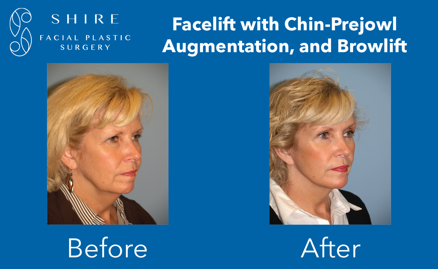 Facelift-Before-After-Group-19