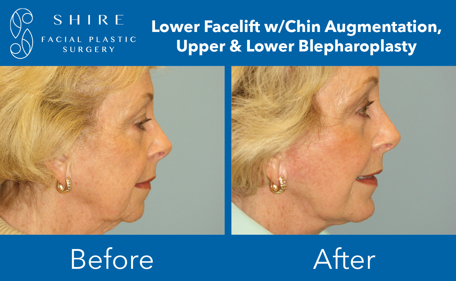 Facelift-Before-After-Group-2