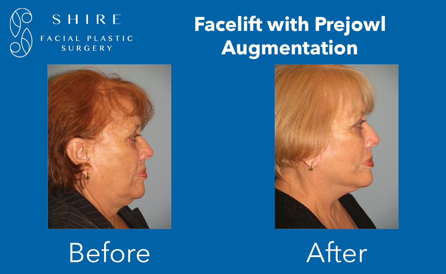 Facelift-Before-After-Group-21