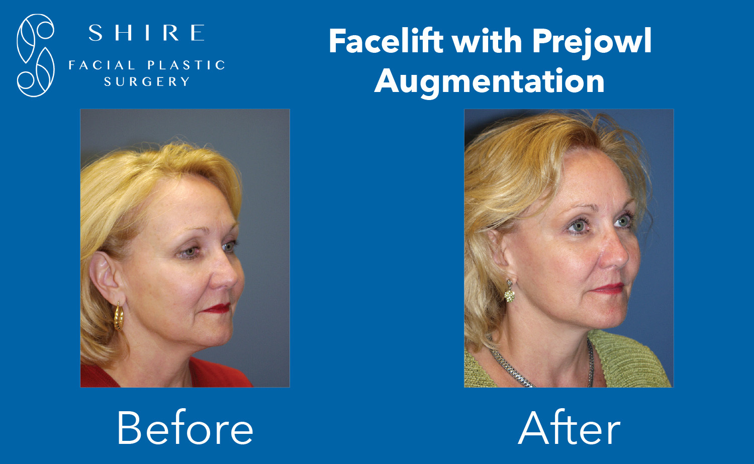 Facelift-Before-After-Group-22