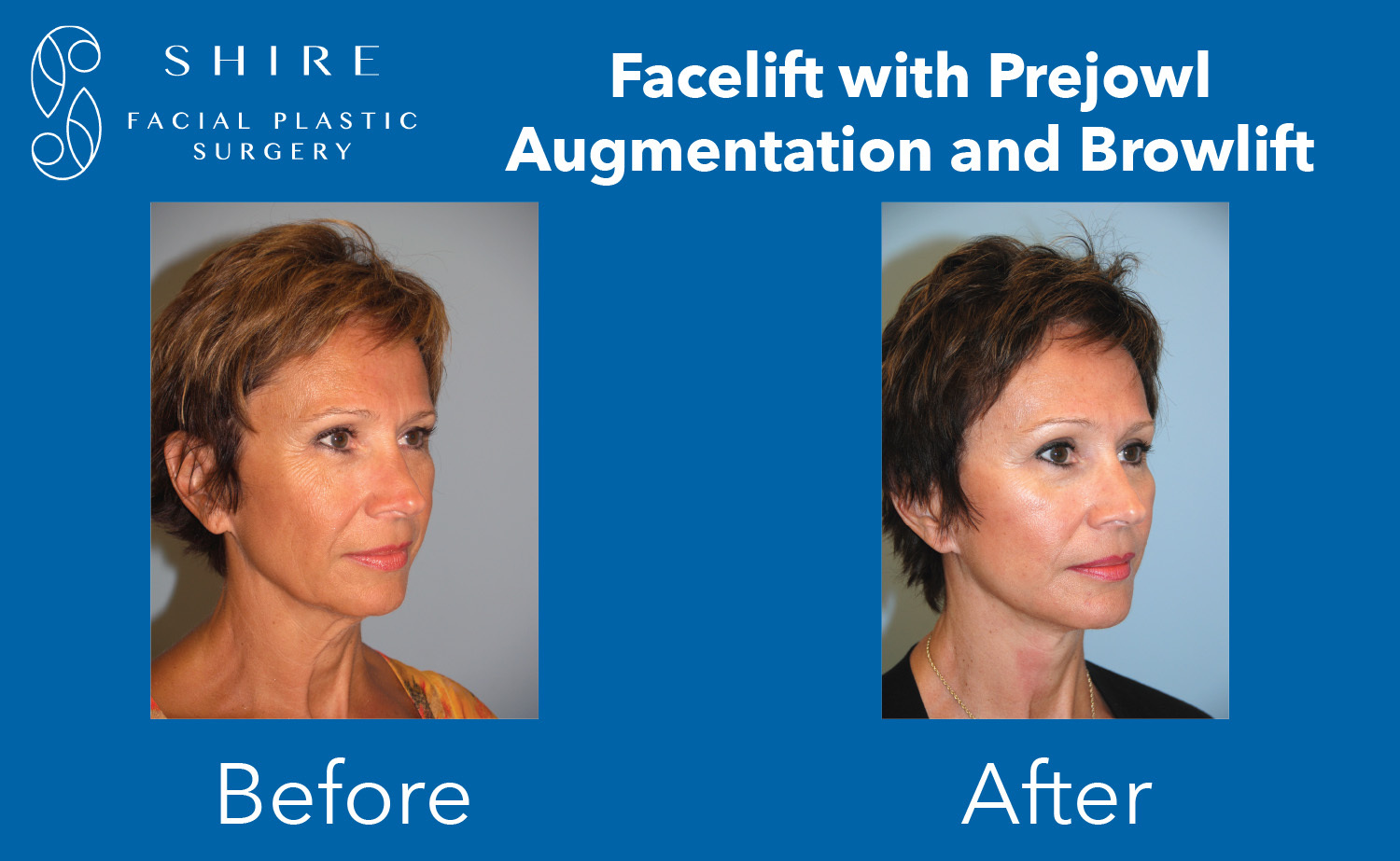 Facelift-Before-After-Group-23