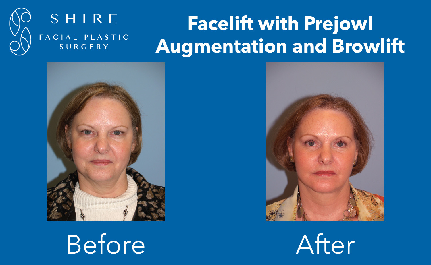 Facelift-Before-After-Group-24
