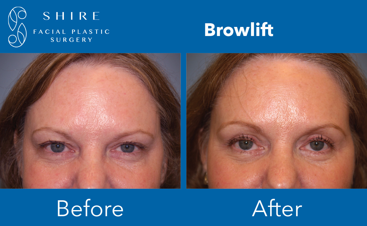 Facelift-Before-After-Group-25