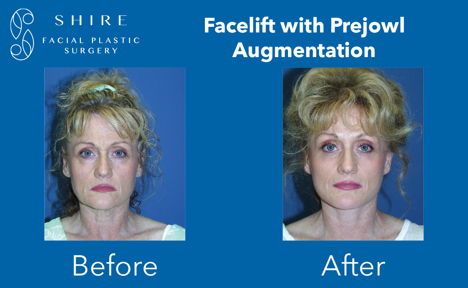 Facelift-Before-After-Group-26