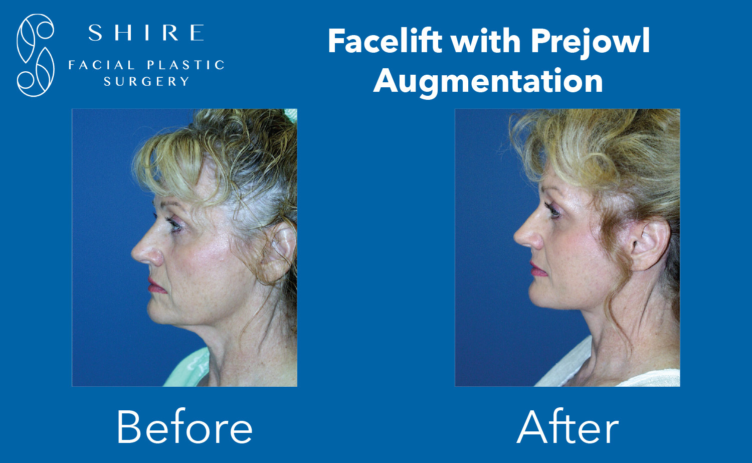 Facelift-Before-After-Group-27