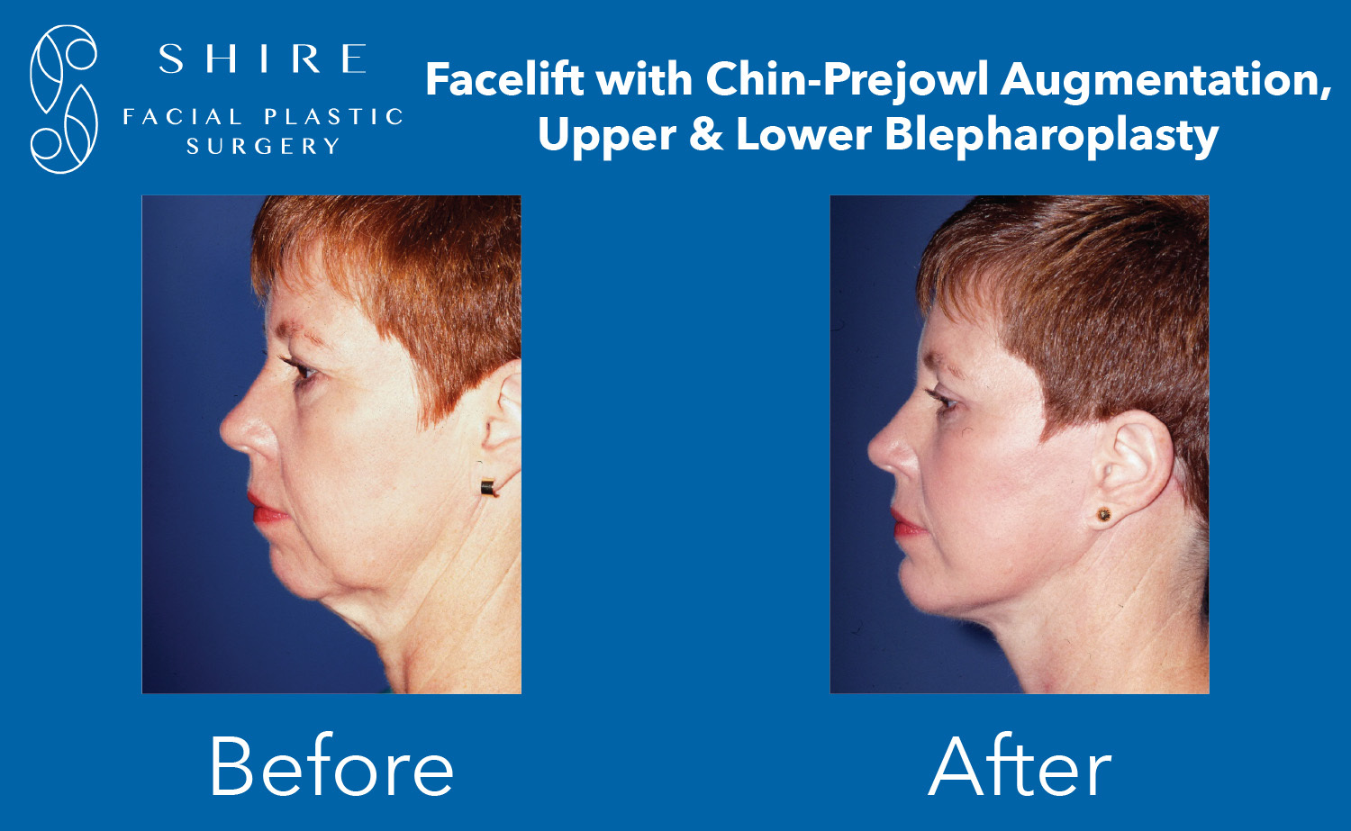 Facelift-Before-After-Group-28