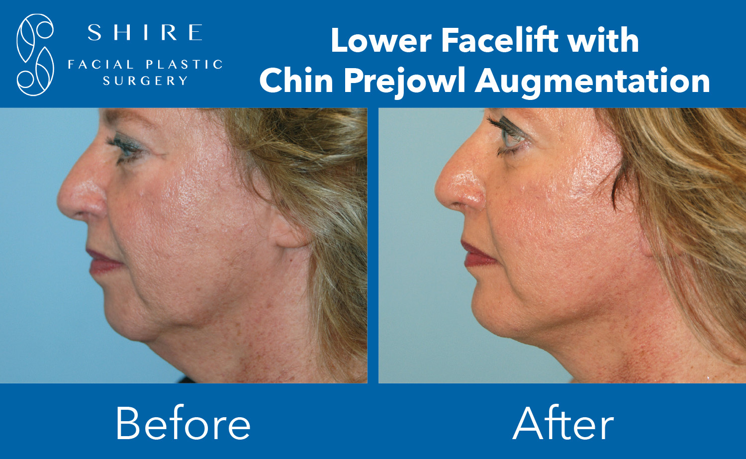 Facelift-Before-After-Group-3