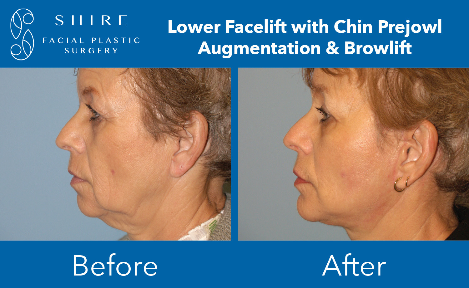 Facelift-Before-After-Group-4