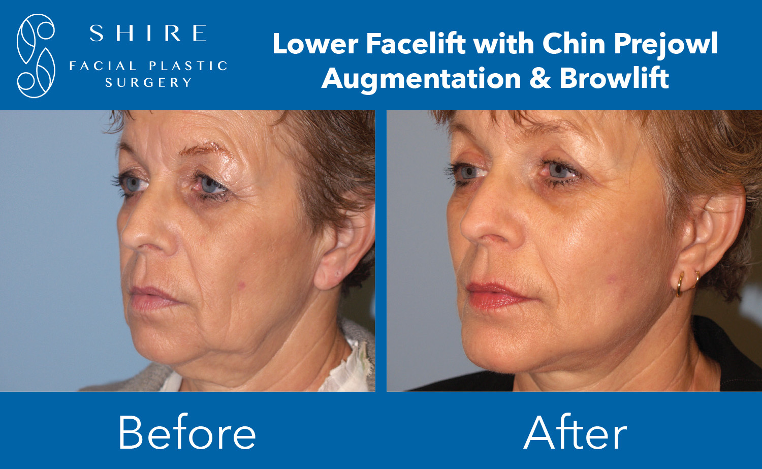 Facelift-Before-After-Group-5
