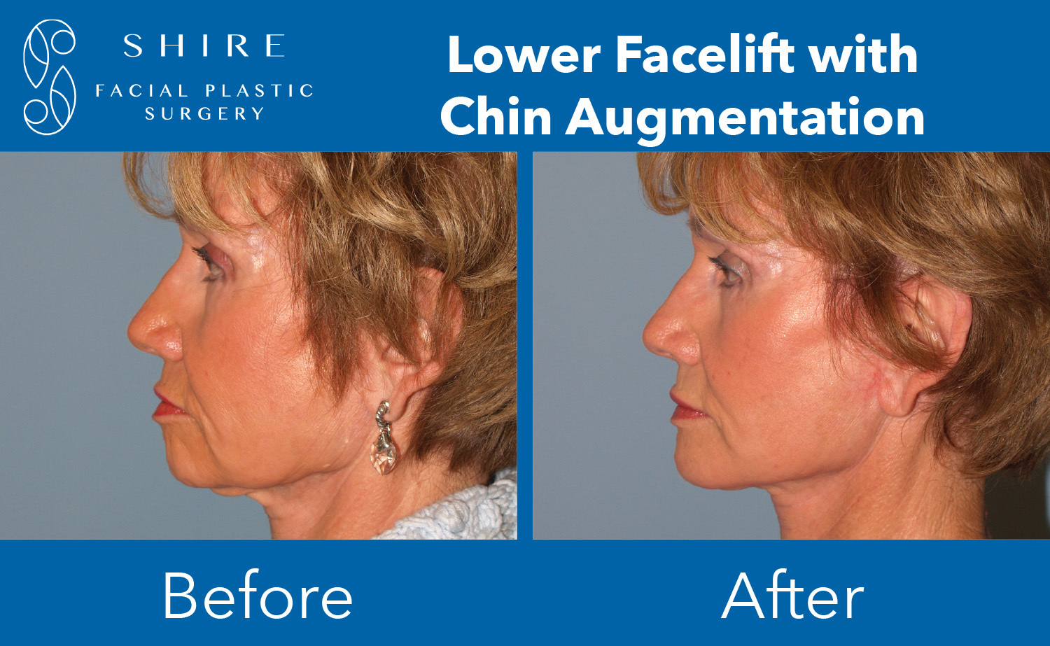 Facelift-Before-After-Group-6
