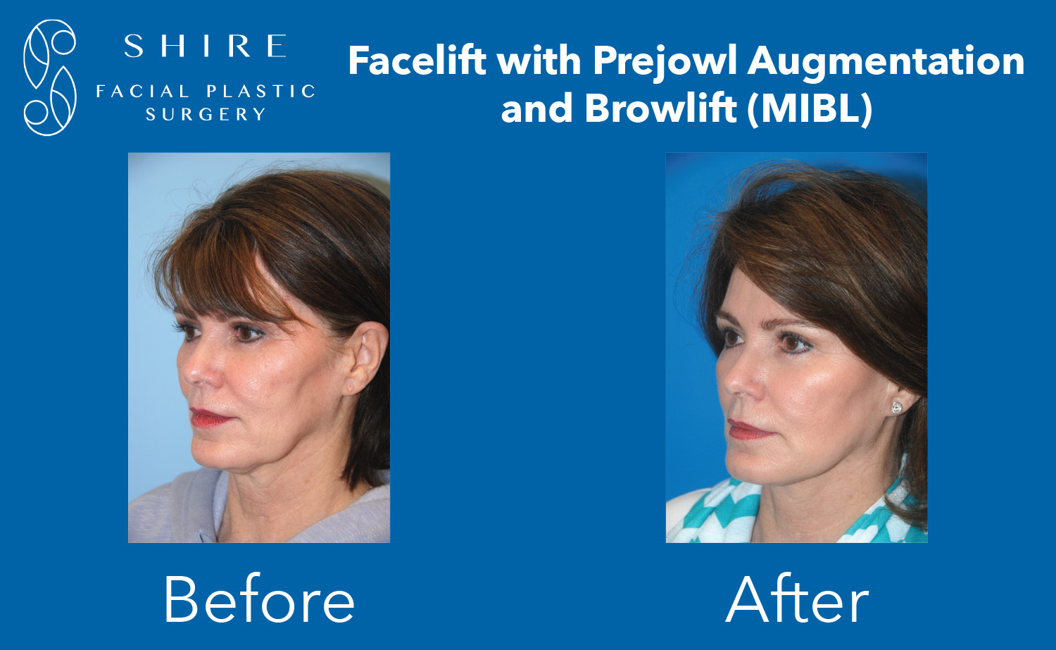 Facelift-Before-After-Group-7