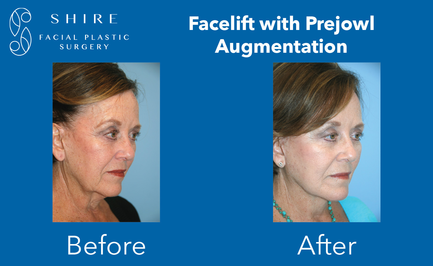 Facelift-Before-After-Group-8