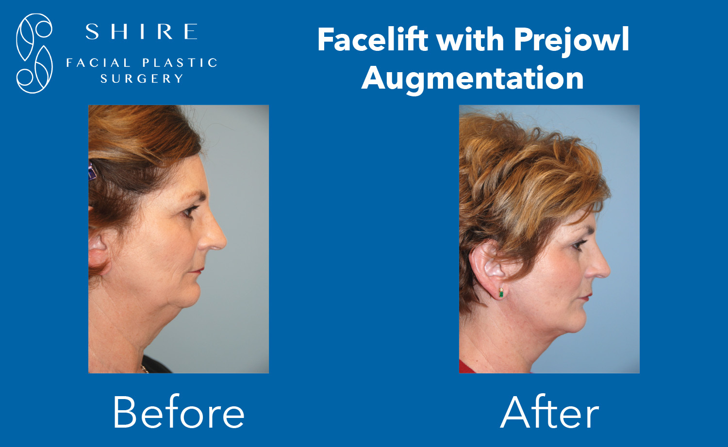 Facelift-Before-After-Group-9