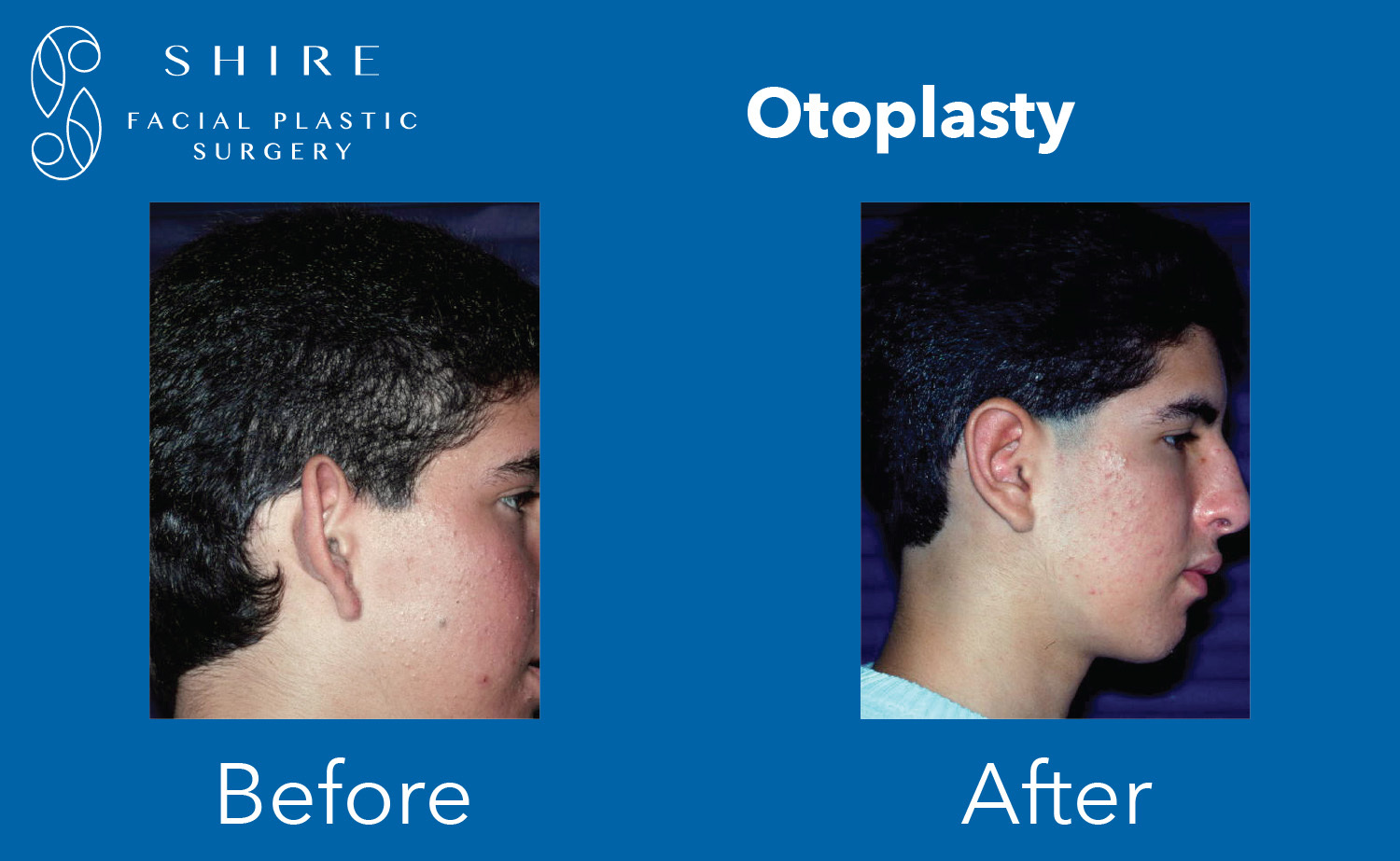 Otoplasty-Before-After-Group-1
