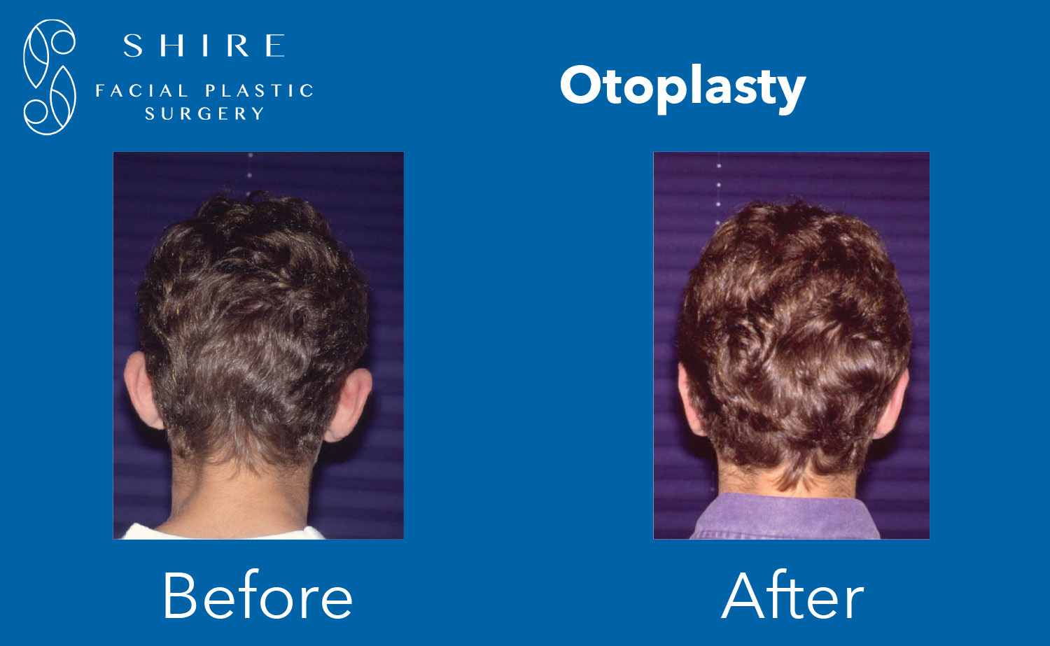 Otoplasty-Before-After-Group-2
