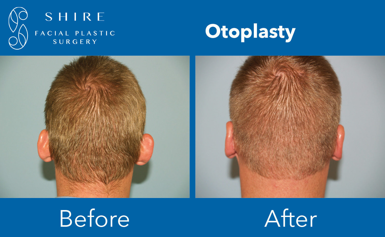 Otoplasty-Before-After-Group-3