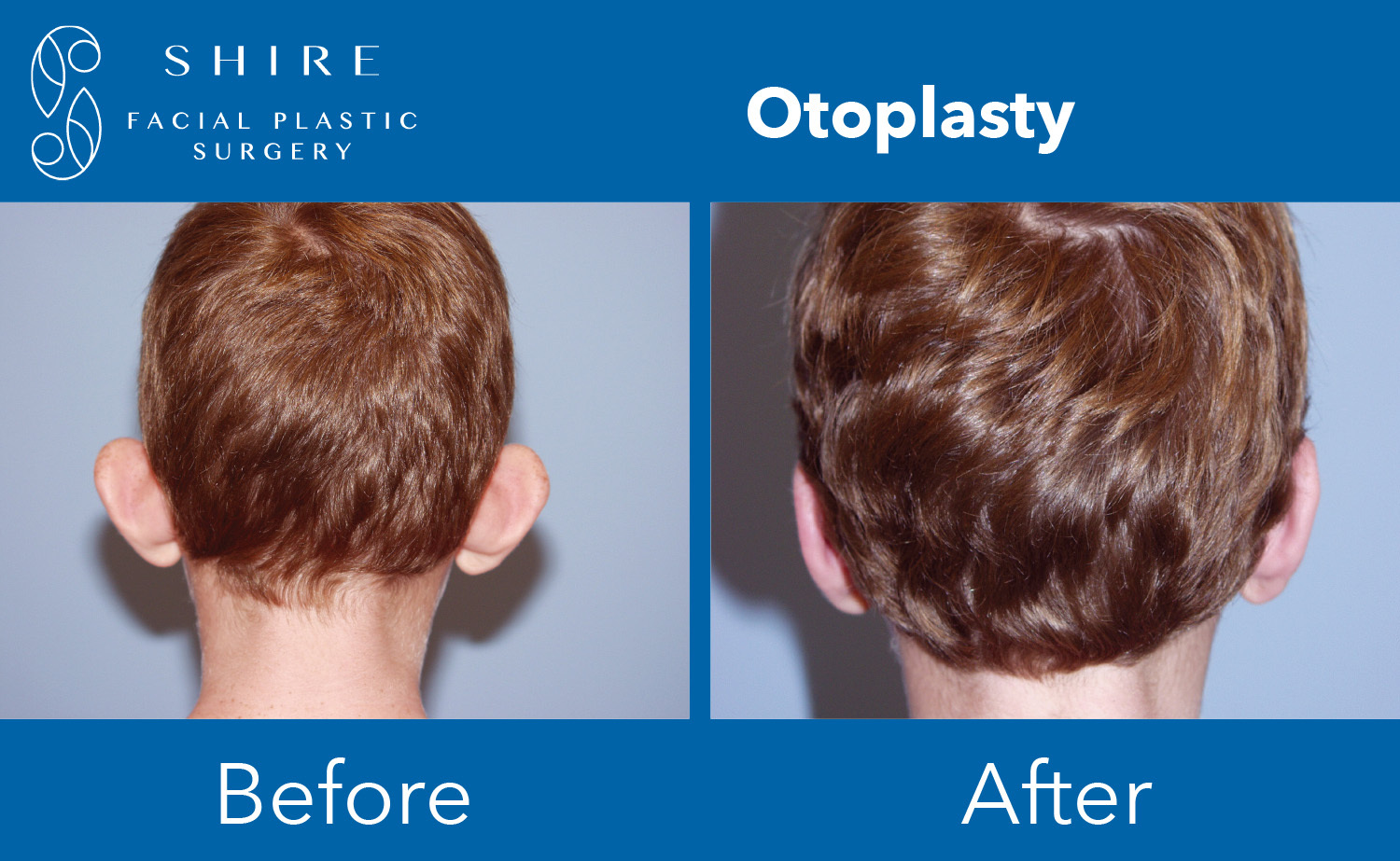 Otoplasty-Before-After-Group-4