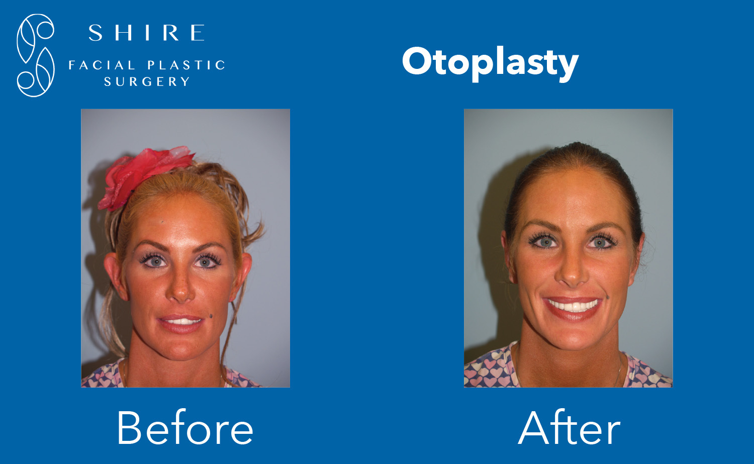 Otoplasty-Before-After-Group-5