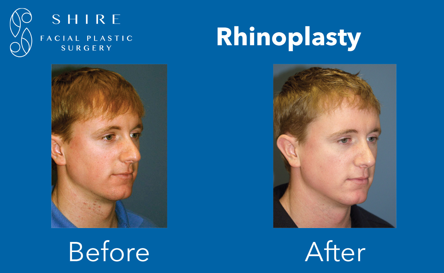 Rhinoplasty-Before-After-Group-1