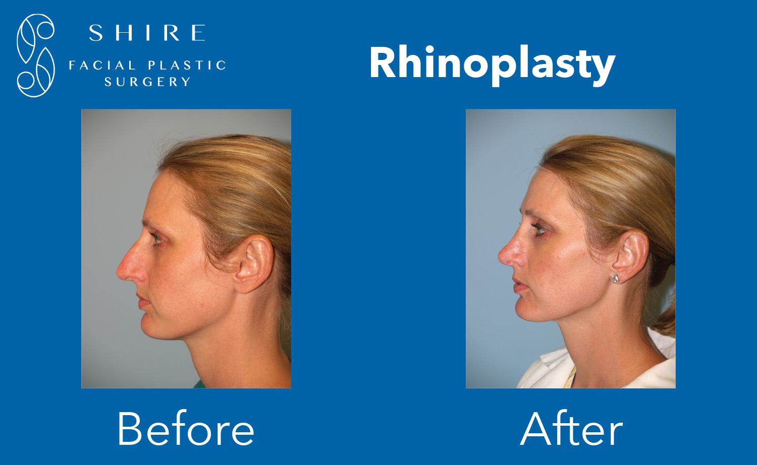 Rhinoplasty-Before-After-Group-10