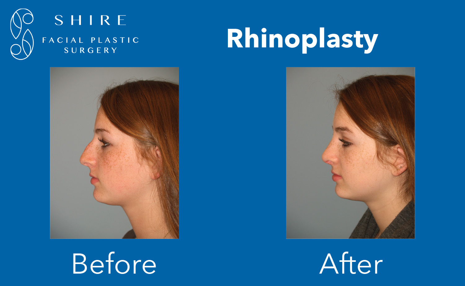 Rhinoplasty-Before-After-Group-11