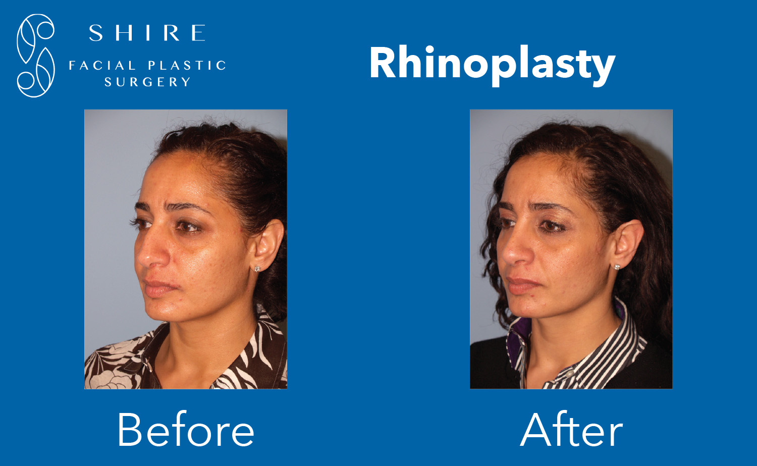 Rhinoplasty-Before-After-Group-12
