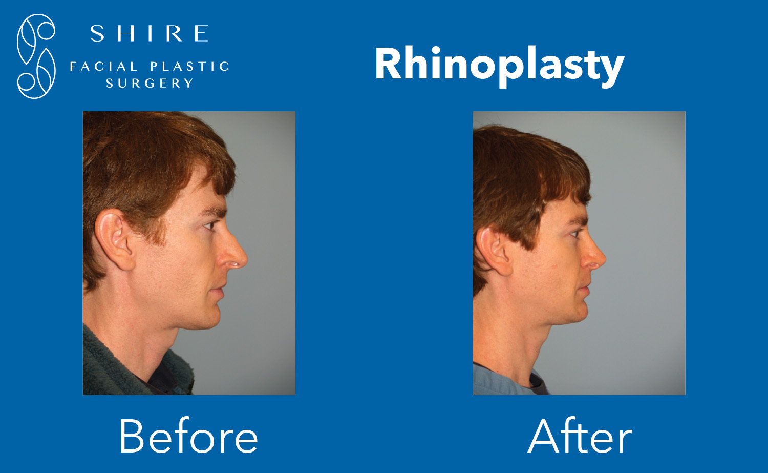 Rhinoplasty-Before-After-Group-13
