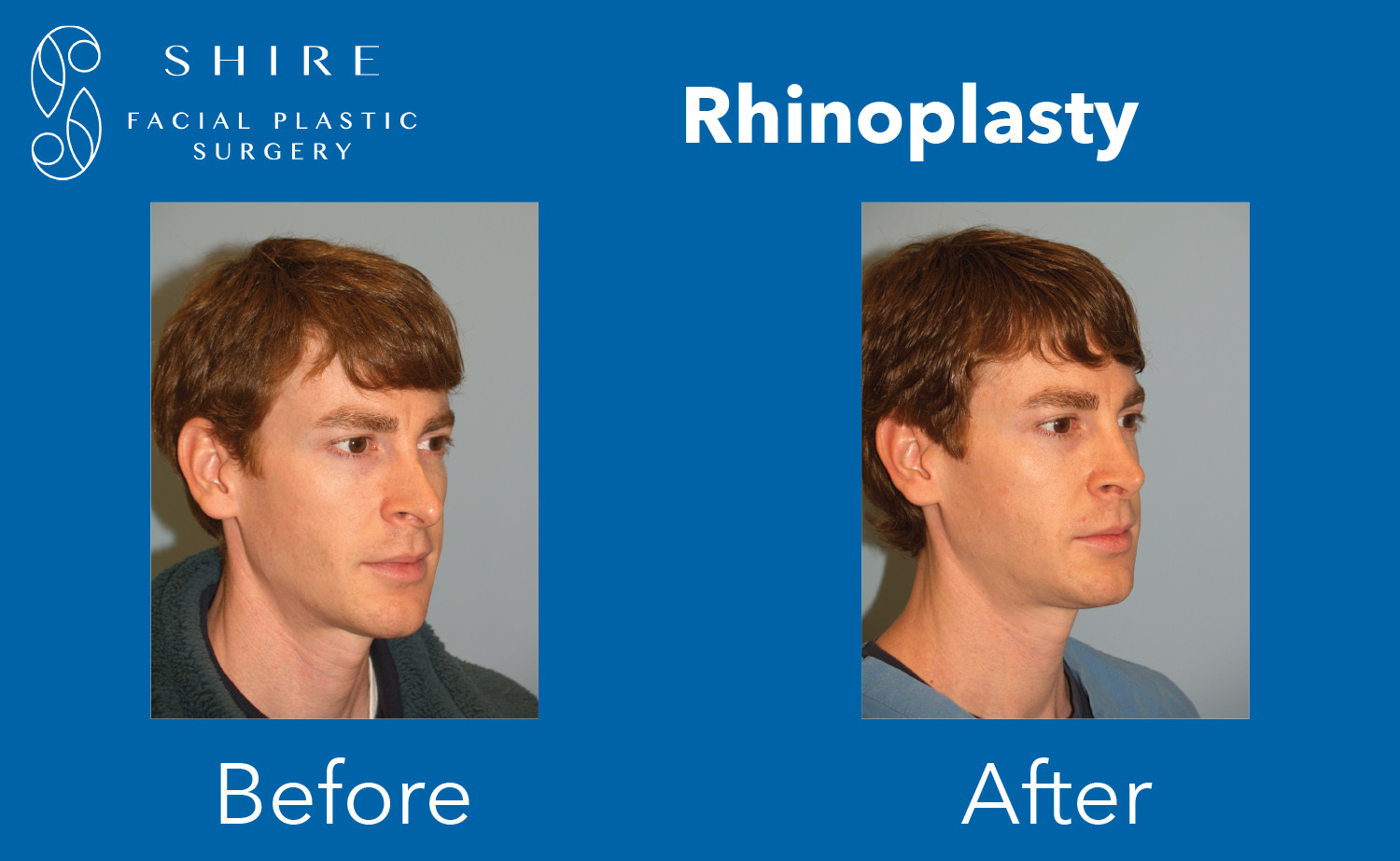 Rhinoplasty-Before-After-Group-14
