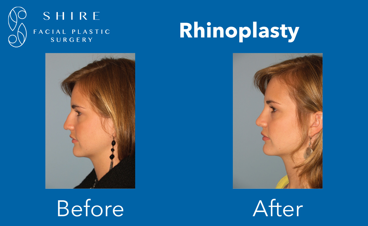 Rhinoplasty-Before-After-Group-2