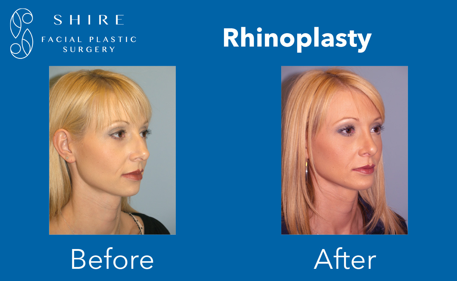 Rhinoplasty-Before-After-Group-3