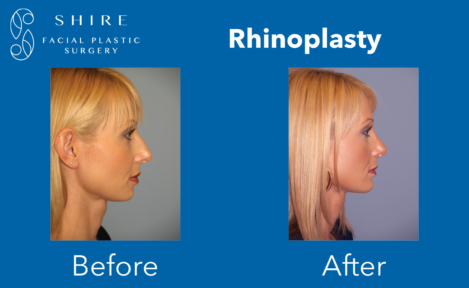 Rhinoplasty-Before-After-Group-4