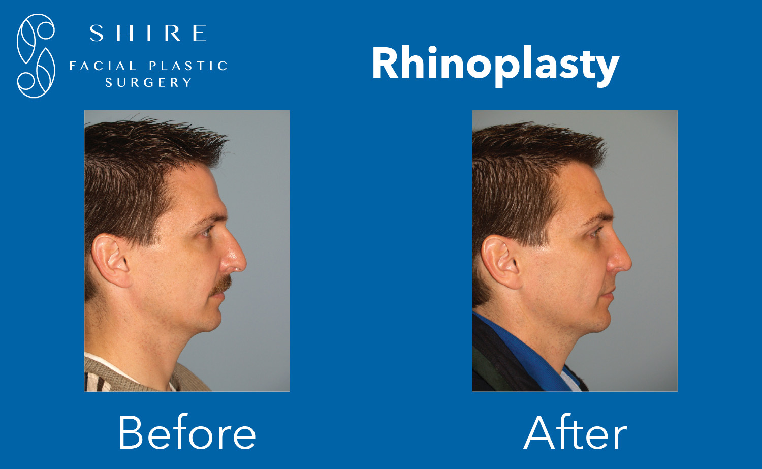 Rhinoplasty-Before-After-Group-5