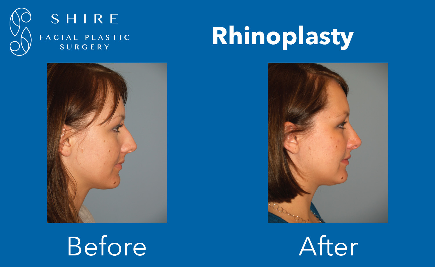 Rhinoplasty-Before-After-Group-6