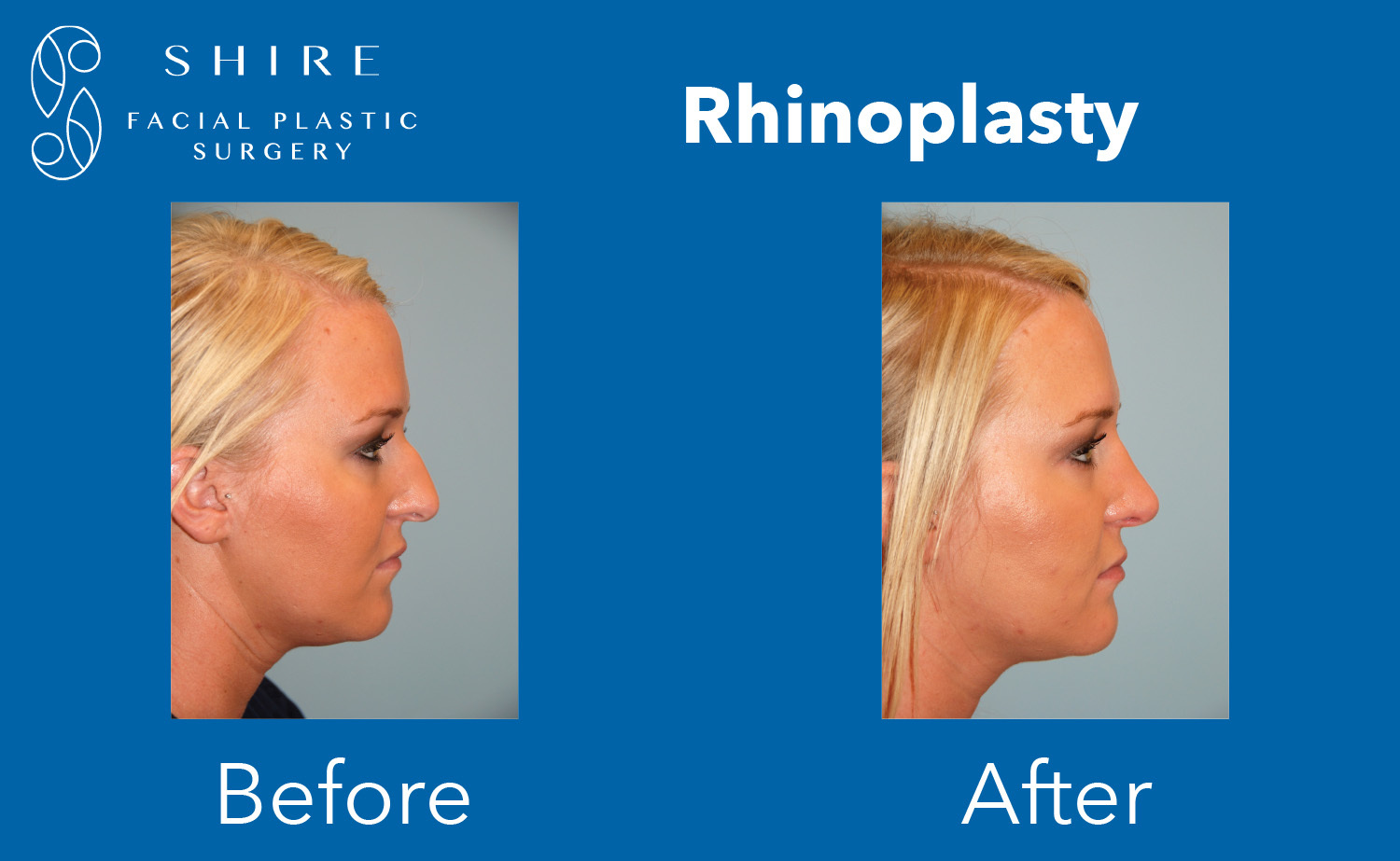 Rhinoplasty-Before-After-Group-7