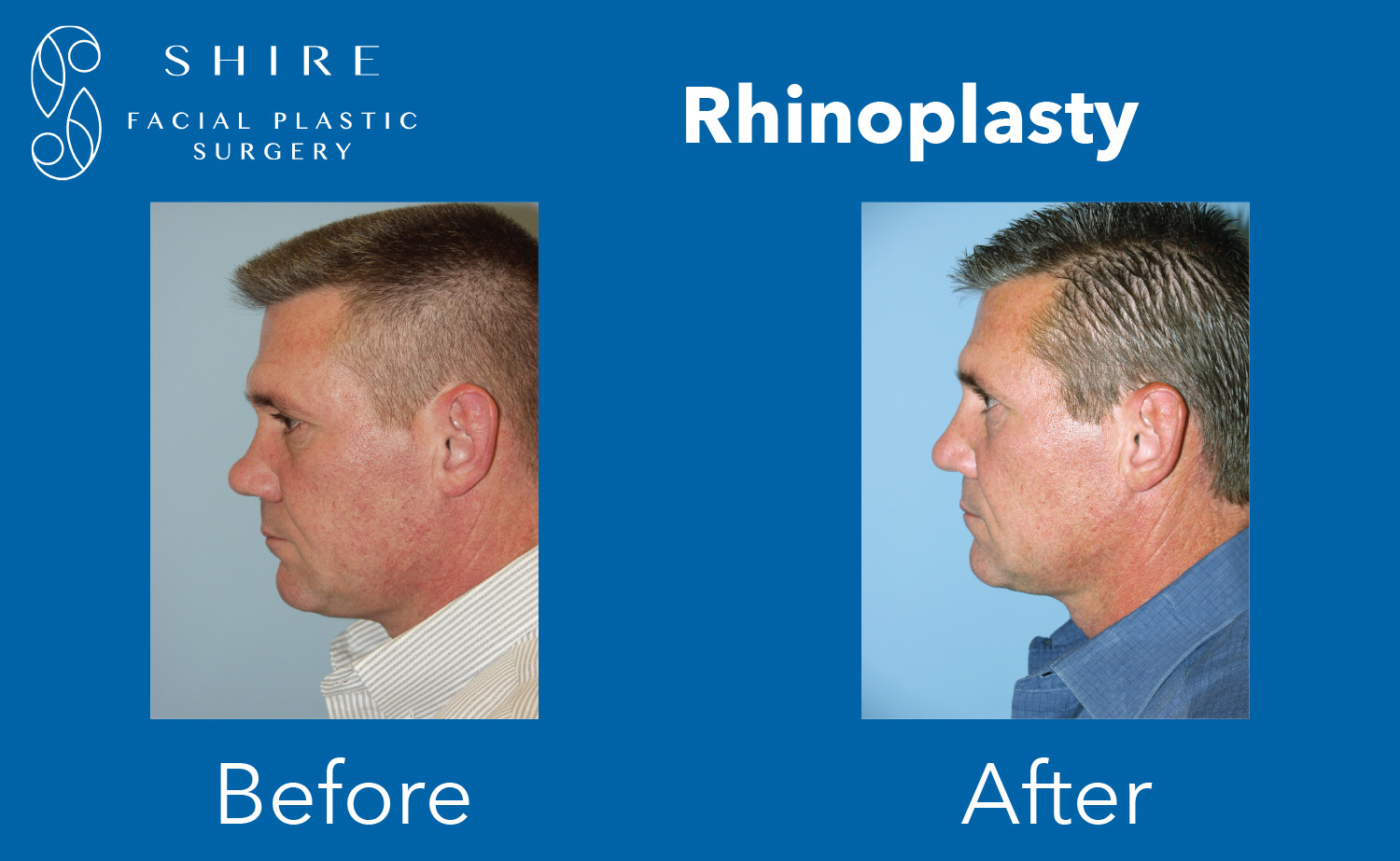 Rhinoplasty-Before-After-Group-8