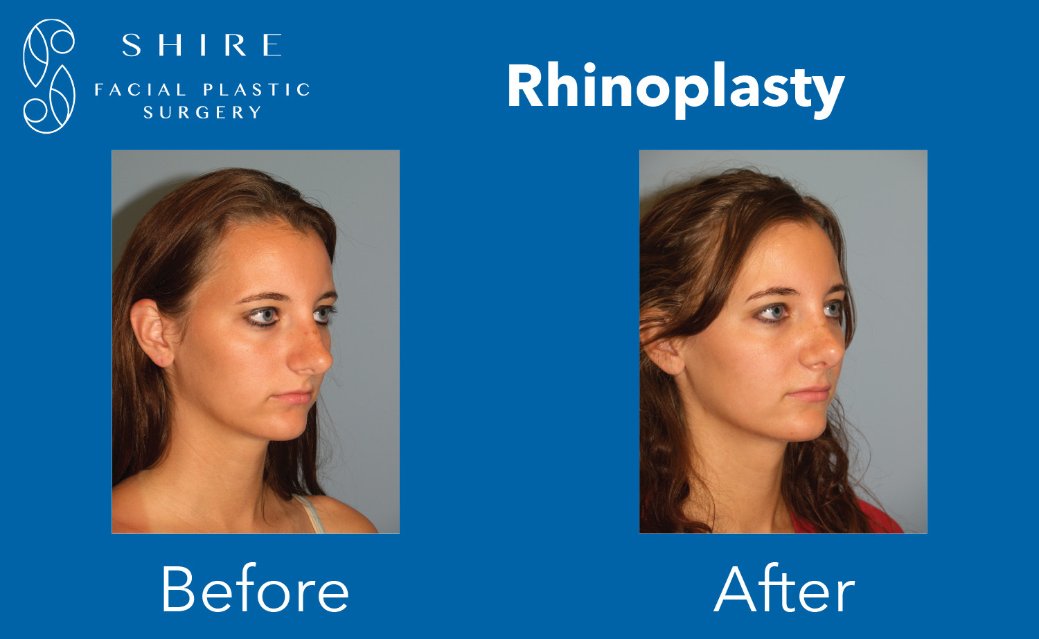 Rhinoplasty-Before-After-Group-9