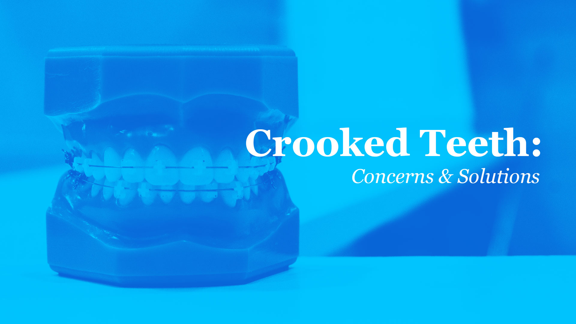 Crooked-Teeth-Concerns-Feat-Image