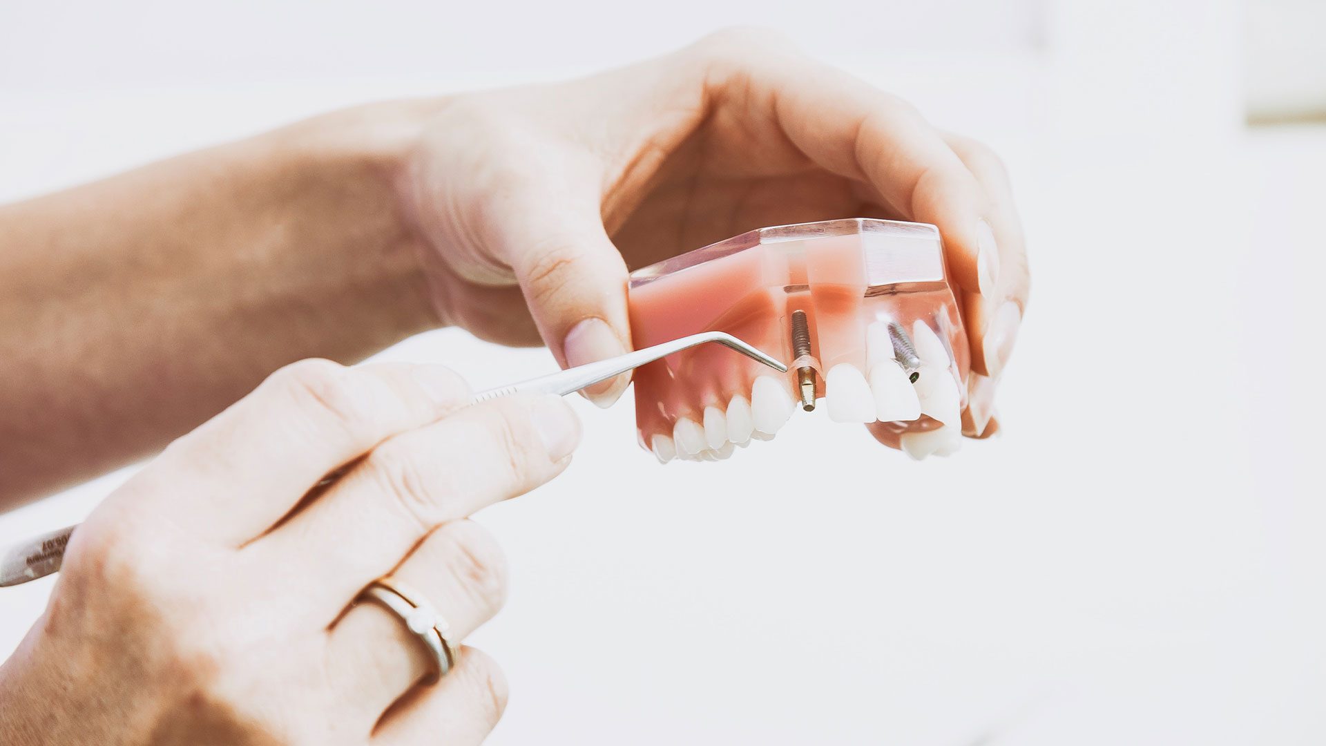 Denture-Stability-Dental-Implants-1