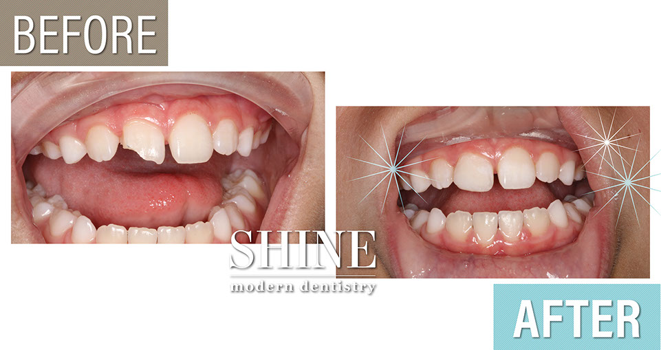 Shine - Before And After 1