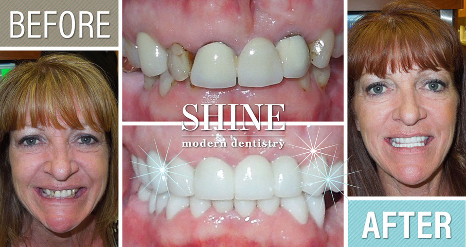 Shine - Before And After 12