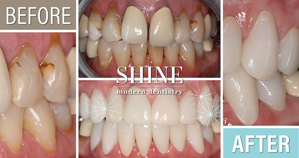 Shine - Before And After 2