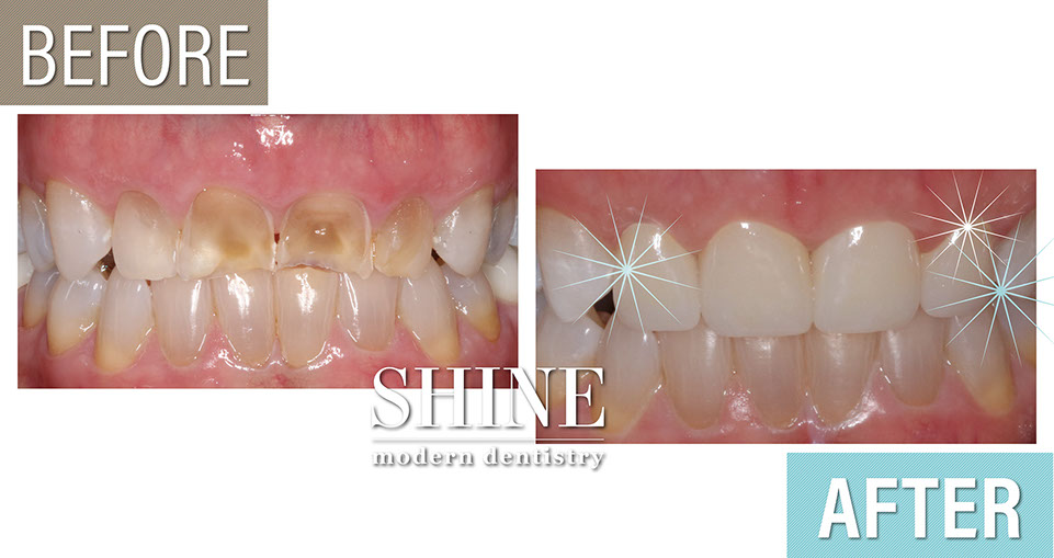 Shine - Before And After 3