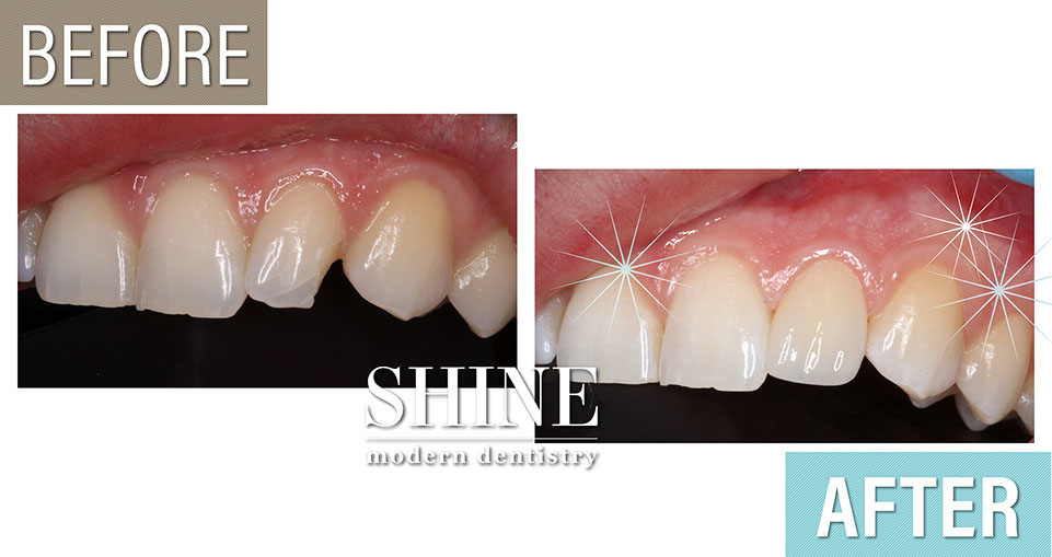 Shine - Before And After 4