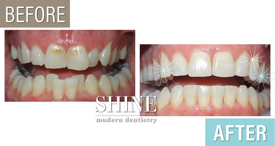 Shine - Before And After 5