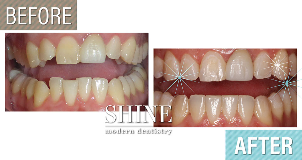 Shine - Before And After 6