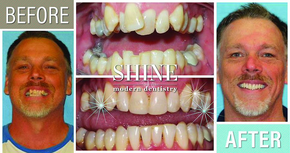 Shine - Before And After 7