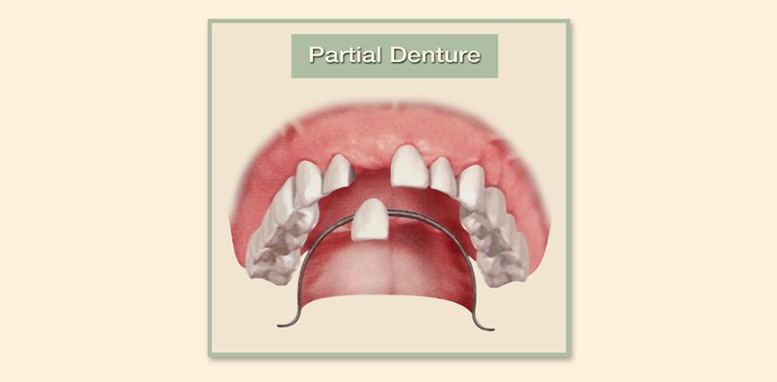 Family Dental Group - Full Dentures