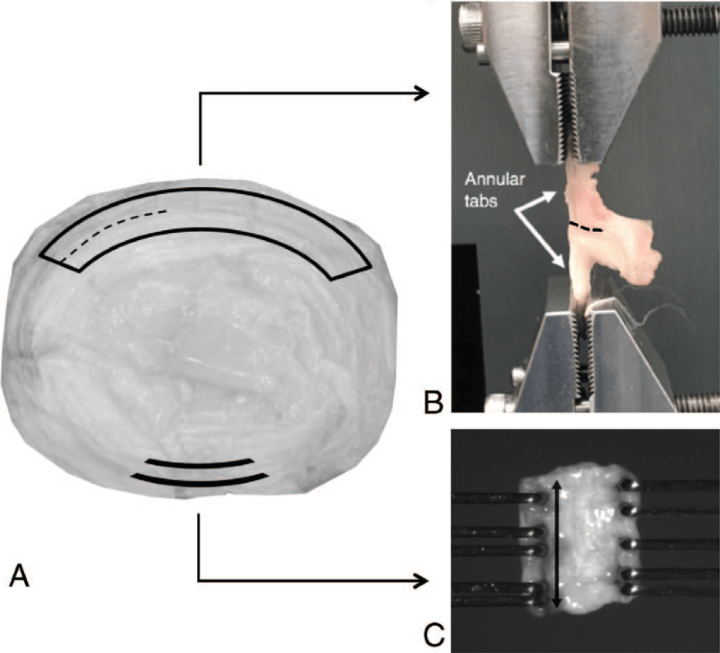 CellScale User Publication Highlight: Axial Torsion of the Annulus Fibrosus
