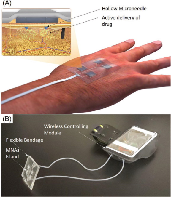 A Wireless Smart Bandage with Miniaturized Needle Arrays